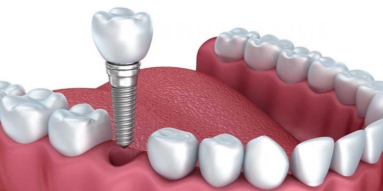 дентальна імплантація